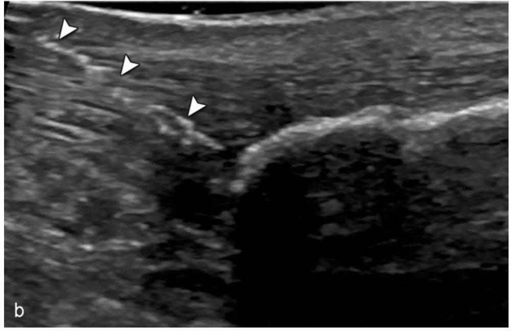 ultrasound needle tenotomy of achilles tendon tendinopathy tendonitis