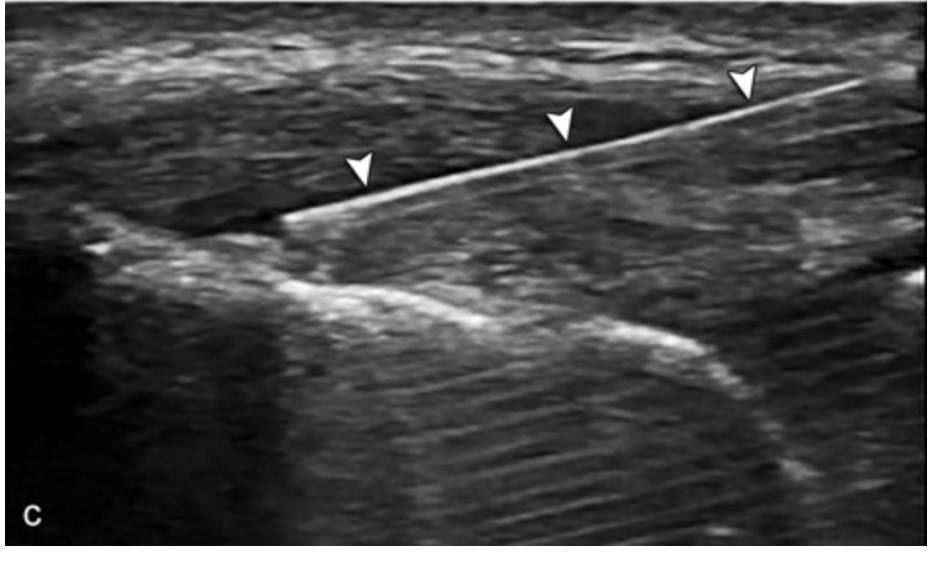 ultrasound needle tentotomy of common extensor tendon tendonitis tendinopathy
