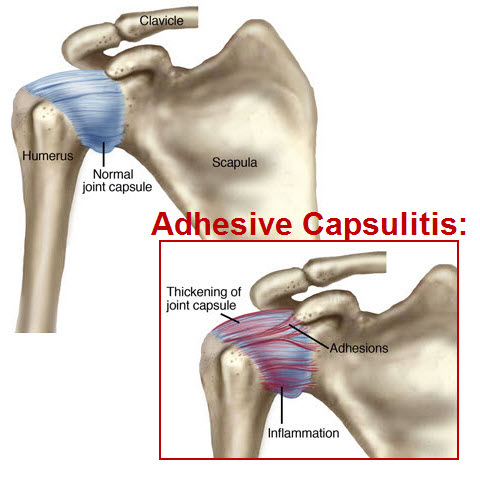 adhesive capsulitis frozen shoulder illustration