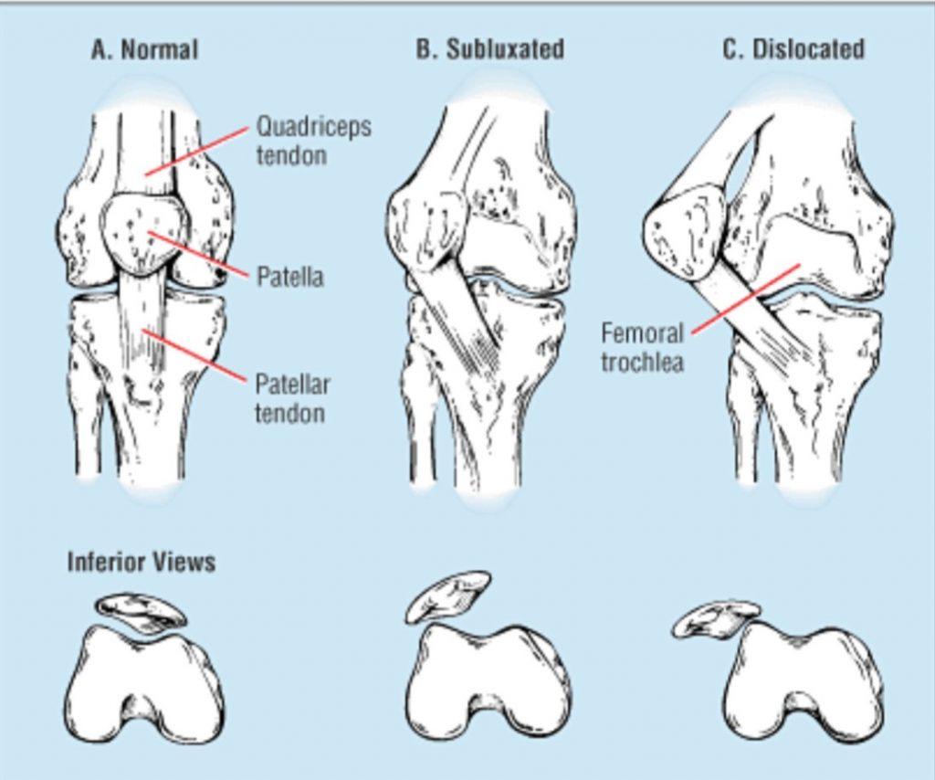 illustration knee normal patella dislocation subluxation