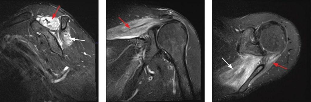 MRI findings of parsonage turner syndrome brachial neuritis