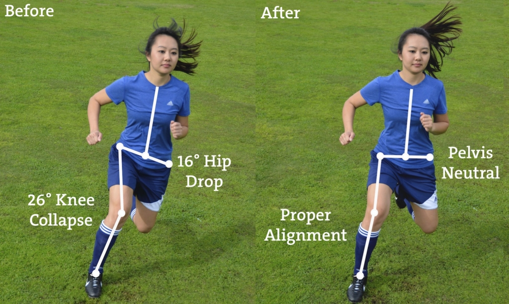 before and after ACL injury prevention program