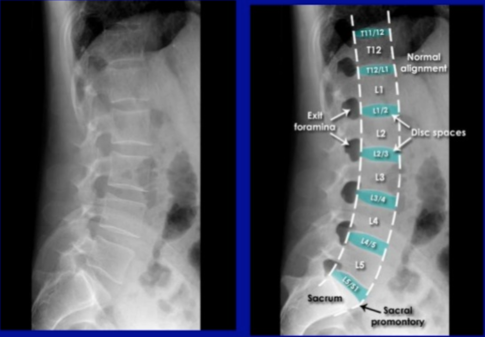 lateral alignment of back labeled and unlabeled