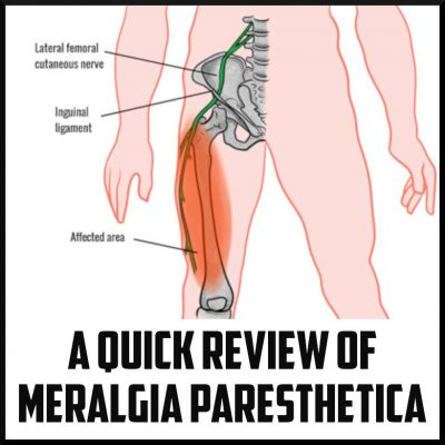 A Quick Review of Meralgia Paresthetica cover