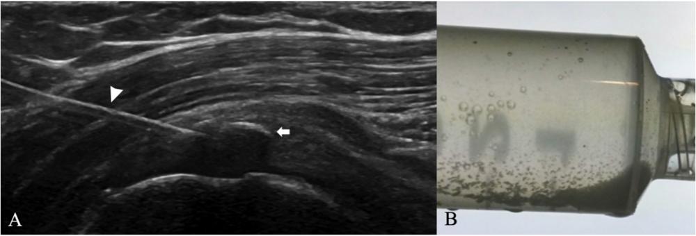 ultrasound barbotage of calcific tendonitis shoulder