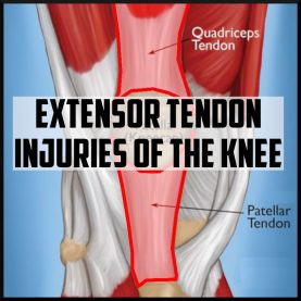 extensor tendon injuries of the knee cover