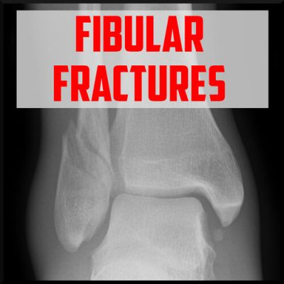 fibular fractures review cover