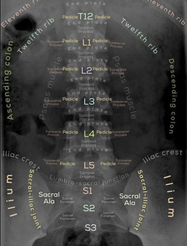 xray of lumbar spine labeled