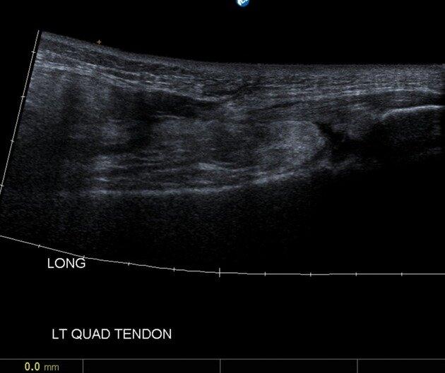 quadriceps rupture ultrasound knee pain