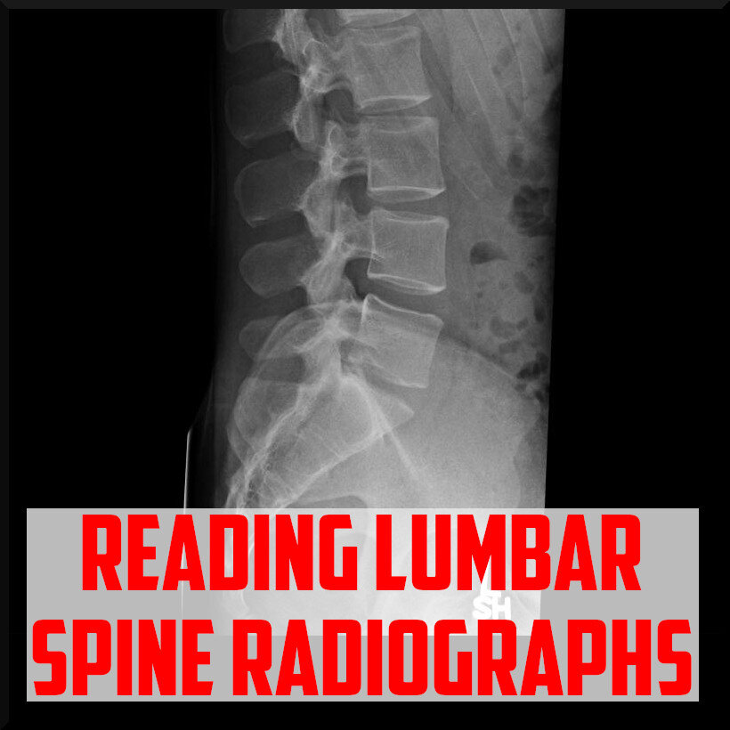 review in reading lumbar spine radiographs