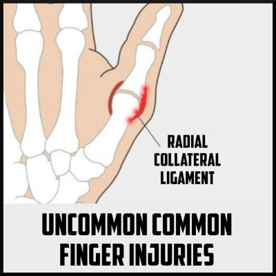 uncommon finger injuries cover