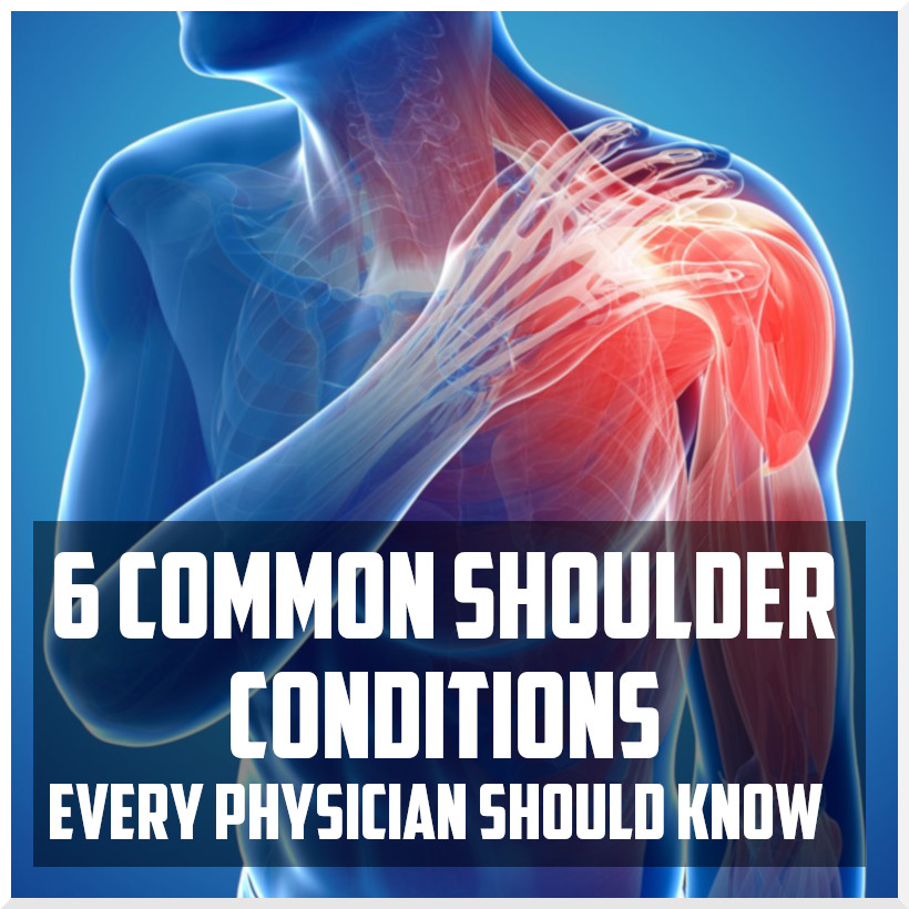 6 common shoulder conditions every physician should know cover