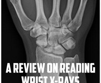 A review on reading wrist x rays cover