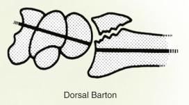 distal radius barton fracture illustration
