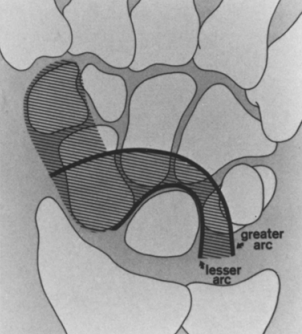 measuring distal radius fractures illustration