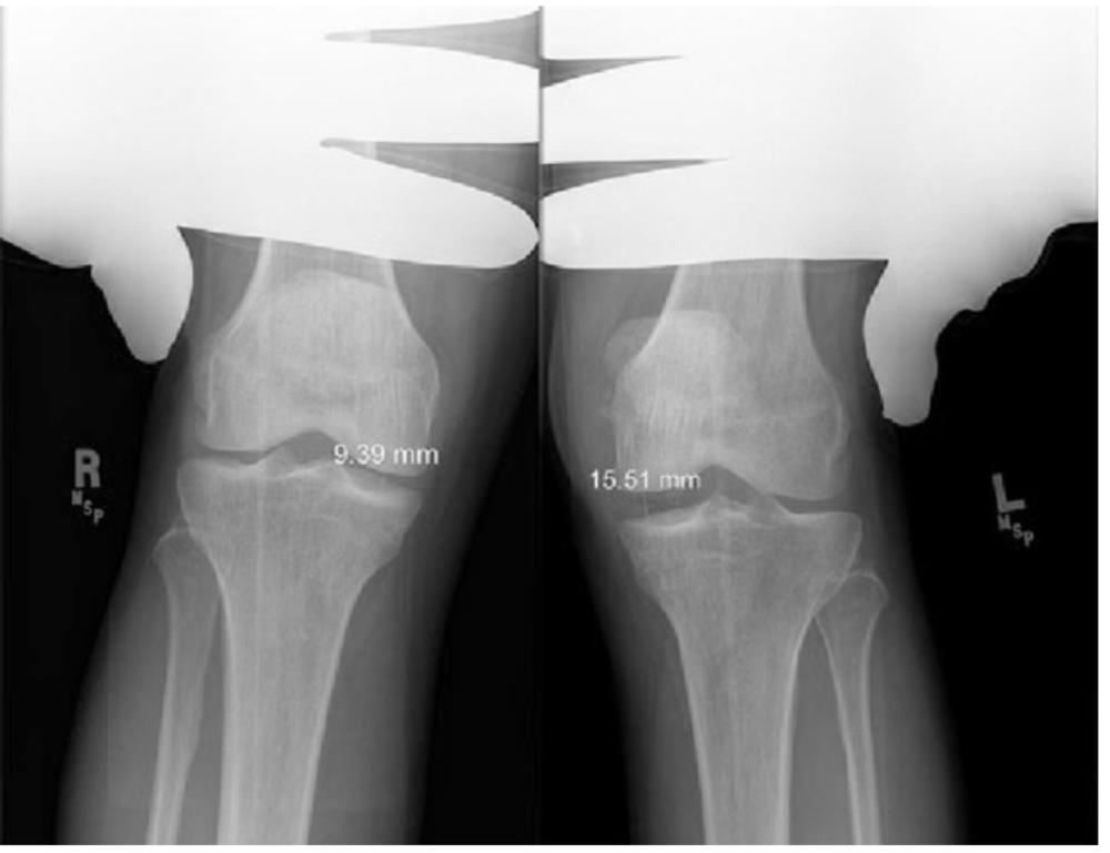 valgus stress test knee xray