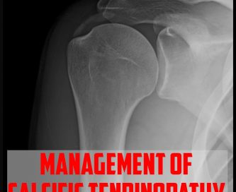 Management of Calcific Tendinopathy cover