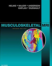 Musculoskeletal MRI book helms