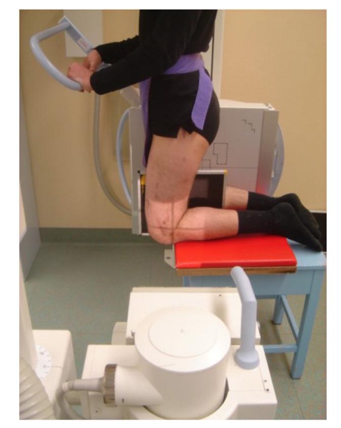 PCL injury stress radiographs xray