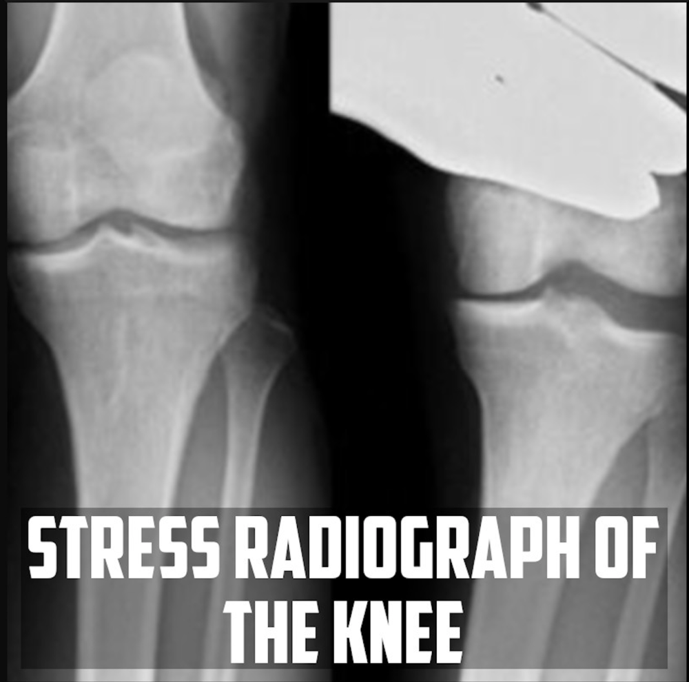 Stress Knee Radiograph cover