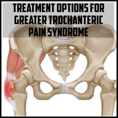 Treatment options for greater trochanteric pain syndrome