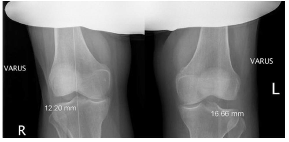 valgus deformity knee xray