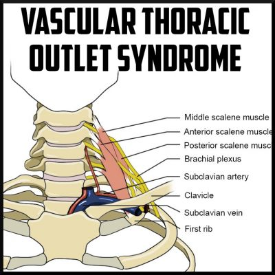 Vascular Thoracic Outlet Syndrome cover