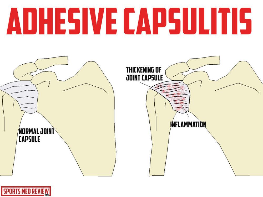 adhesive capsulitis illustration