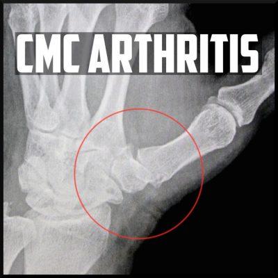 cmc carpometacarpal arthritis cover