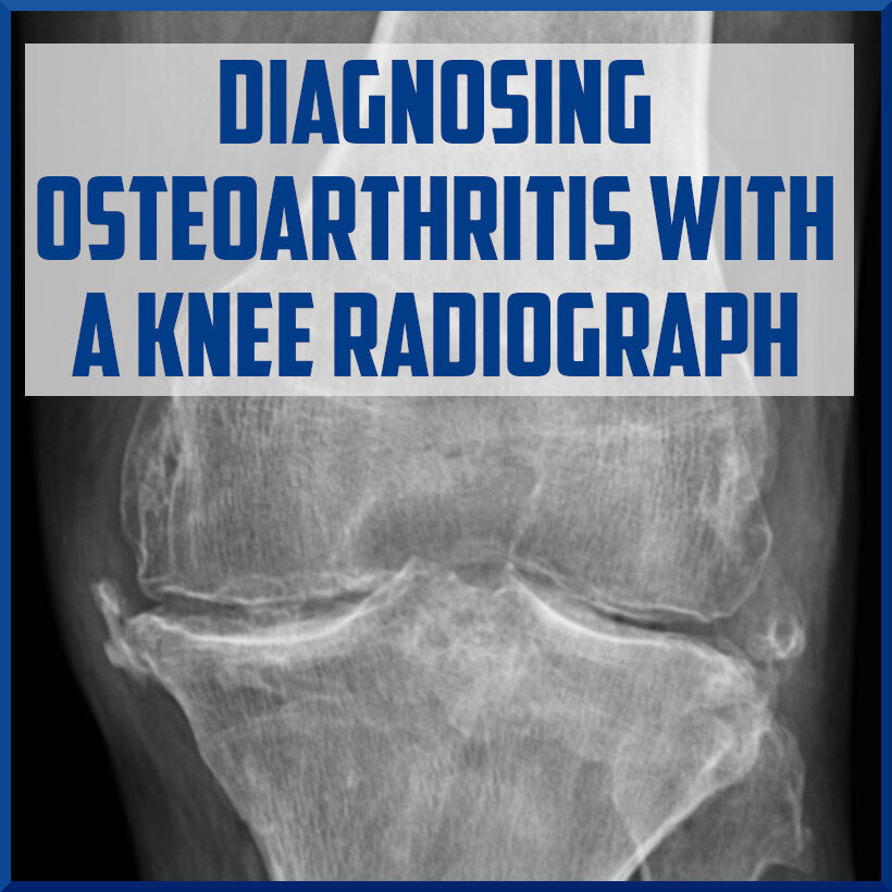 diagnosing osteoarthritis of the knee with a knee radiograph