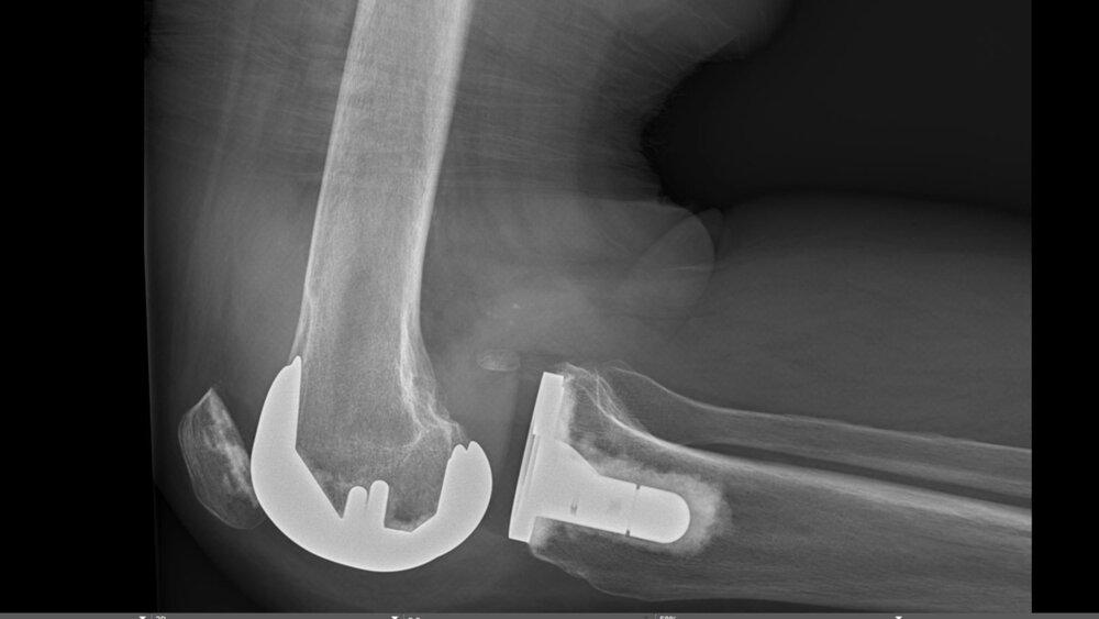 dislocation of knee arthroplasty xray