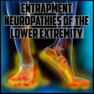 entrapment neuropathies of the lower extremity