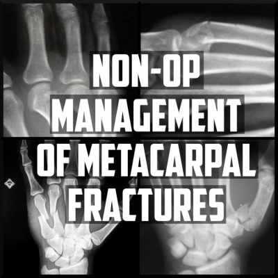 evidence behind the nonop management of metacarpal fractures