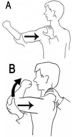 jerk test illustration labral tear shoulder pain