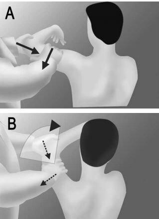 kim test illustration labral tear shoulder pain