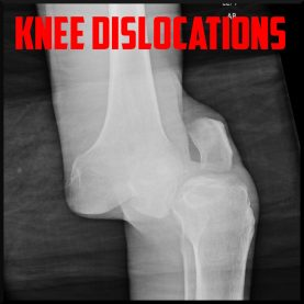 knee dislocation cover