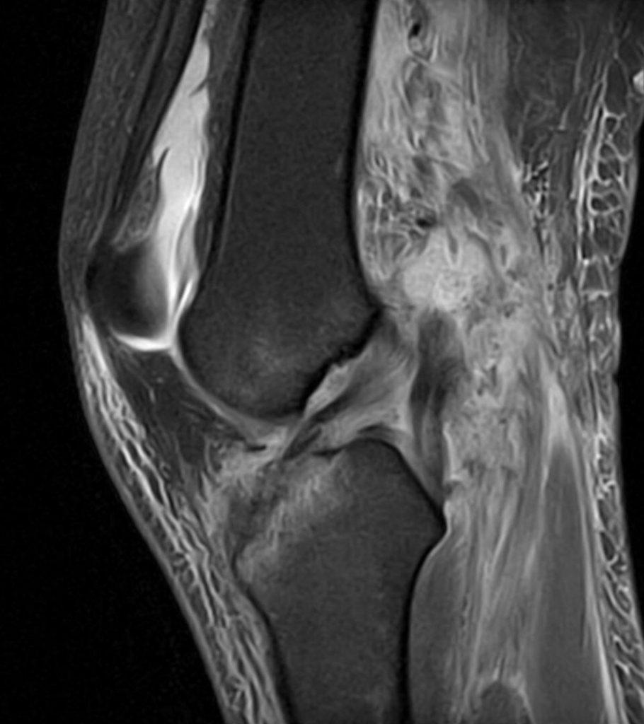 knee mri popliteal artery hematoma