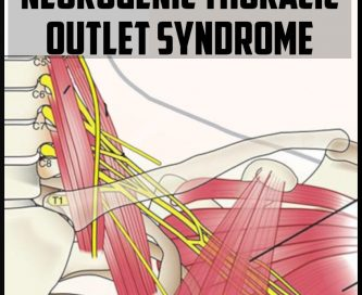 neurogenic thoracic outlet syndrome cover