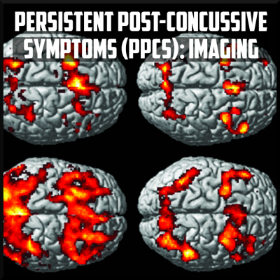 persistent post concussive symptoms imaging cover