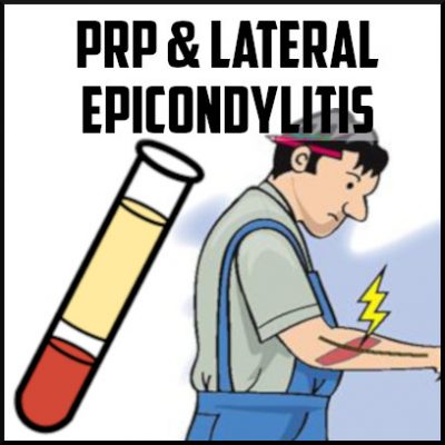 PRP and lateral epicondylitis cover