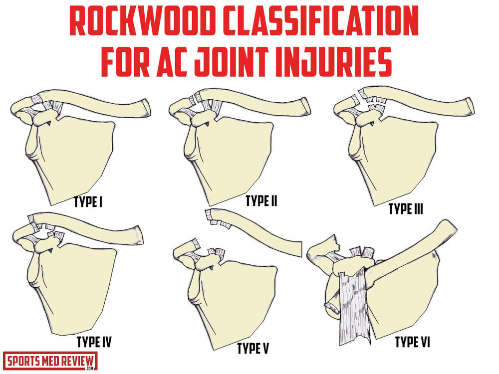 rockwood classification for ac joint injuries