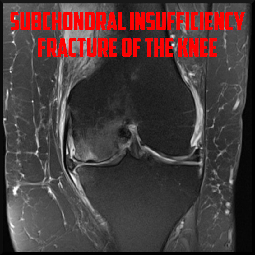 subchondral insufficiency fracture of the knee cover