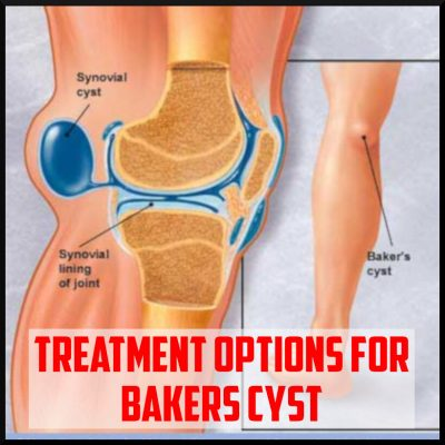 treatment option for bakers cyst cover