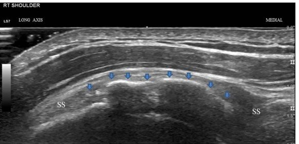 Calcific Tendonitis on Ultrasound