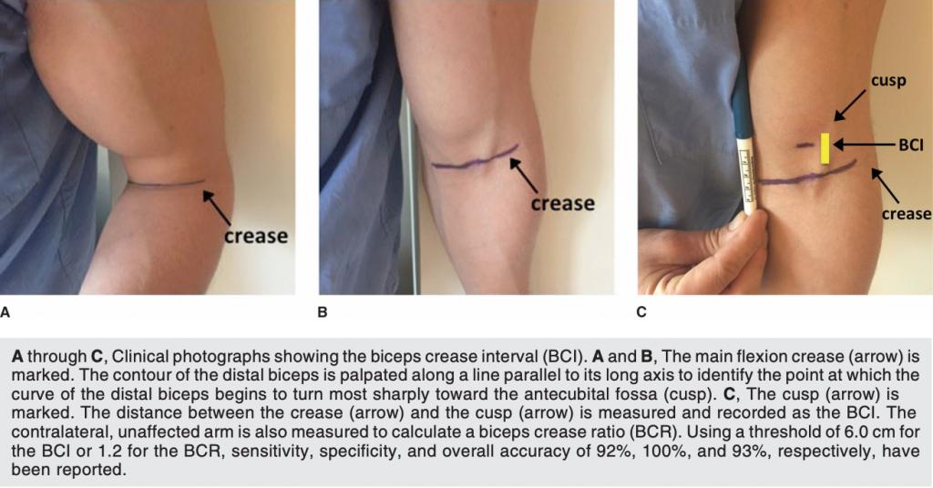 Biceps Crease Interval