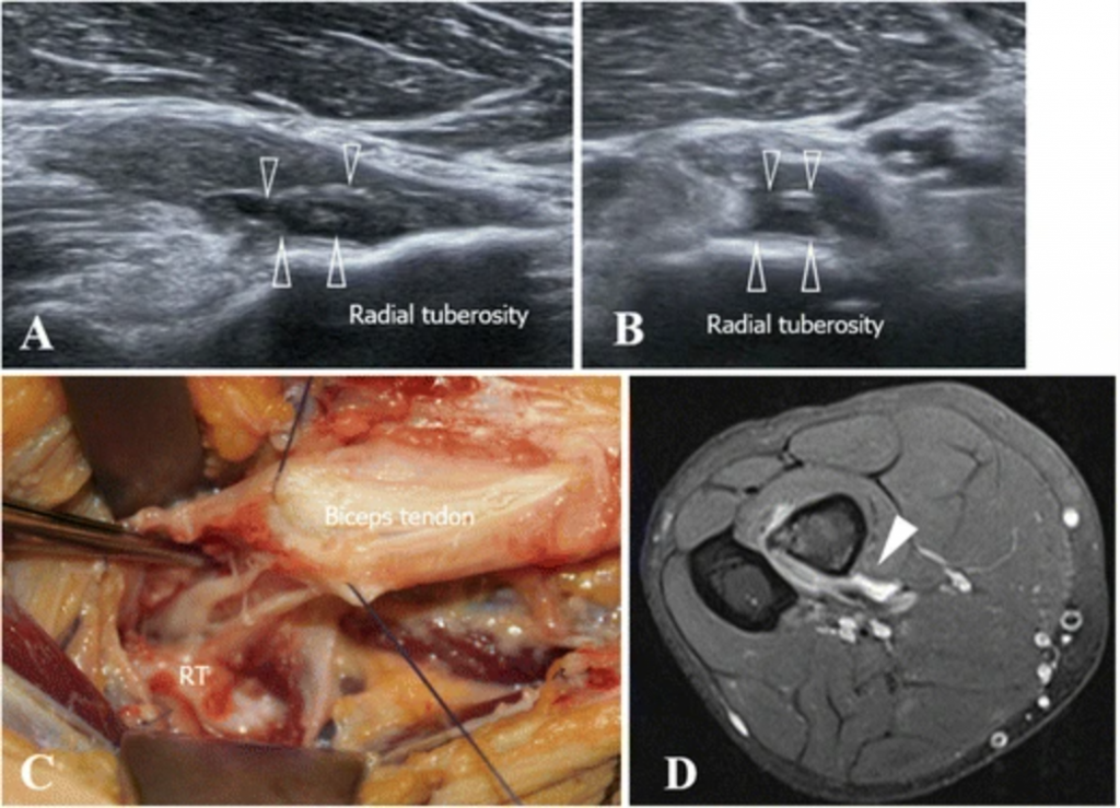 ultrasound, MRI and surgical distal biceps tendon tear