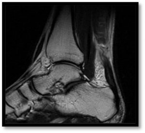 MRI of achilles tendon rupture