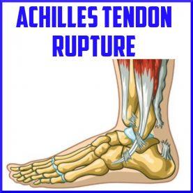 achilles tendon rupture cover