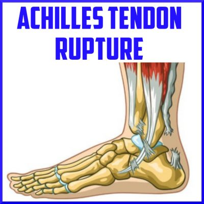 achilles tendon rupture cover
