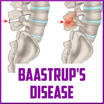 Baastrups Disease Cover